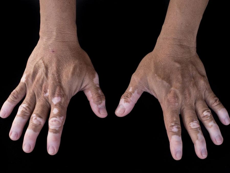 Παθήσεις Δέρματος – Θεραπεία  3615c3ac91a