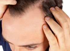 Hair loss treatment with PRP